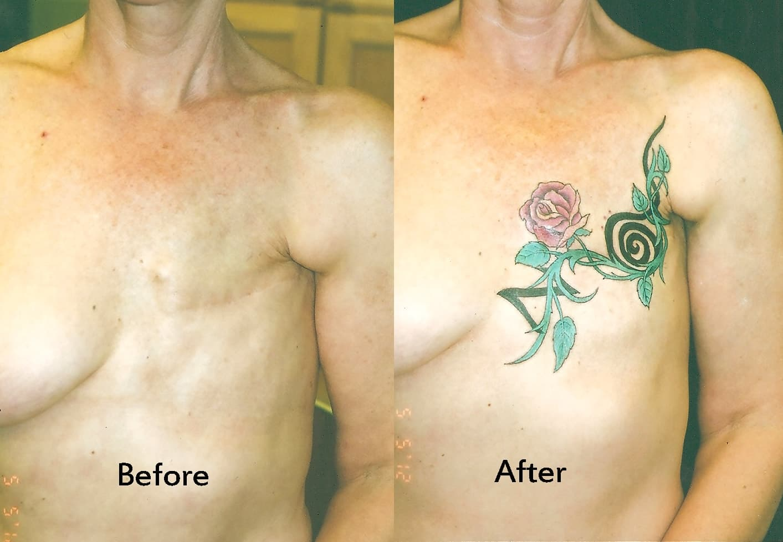 Татуировки на шрамах на животе у мужчин фото