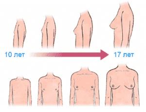 Изменение формы груди у девочки-подростка