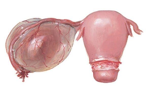 Параовариальная киста – однокамерное образование, заполненное жидкостью