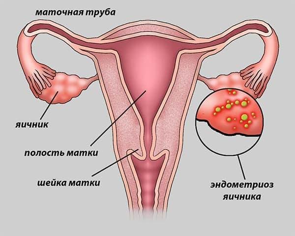 Эндометриоидные клетки могут покидать положенное им место по многим причинам. Ученые до сих пор полностью не разгадали эту загадку