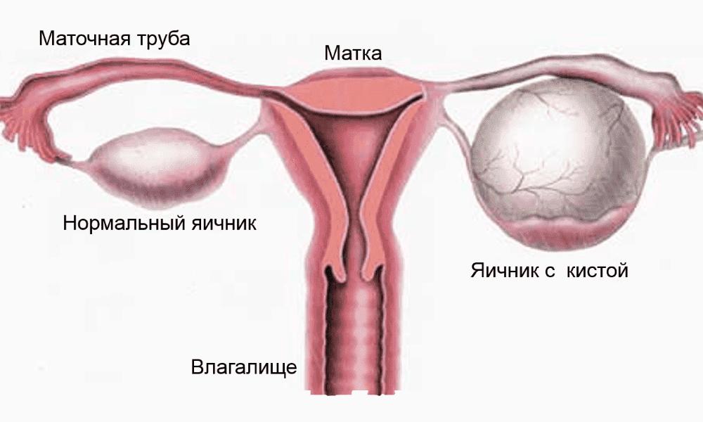Геморрагическая функциональная киста яичника