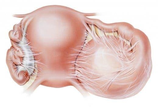 После лапароскопии при кисте яичника формируются спайки – соединительнотканные тяжи между органами таза