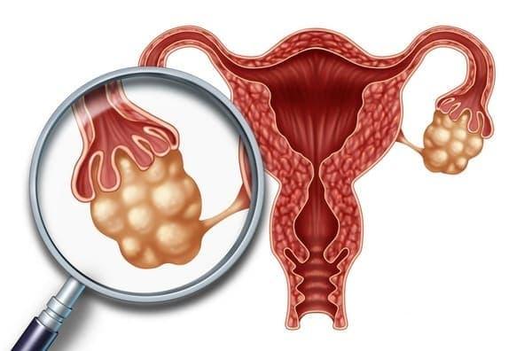 Склерокистоз яичников – это патология, при которой образуются мелкие полости до 1 см в диаметре