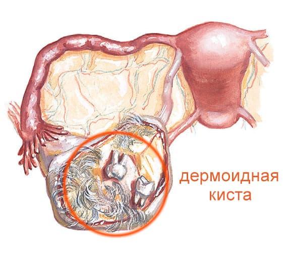 Внутри дермоидной кисты могут находиться различные ткани (зубы, волосы, хрящи, кости, ногти)