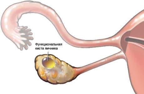 Функциональные кисты яичника в большинстве случае рассасываются сами через 2-3 месяца