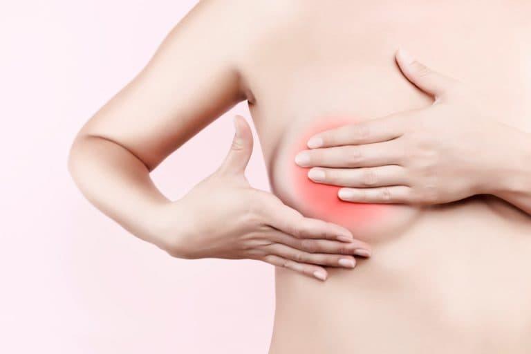 как лечить уплотнение в молочной железе при грудном вскармливании