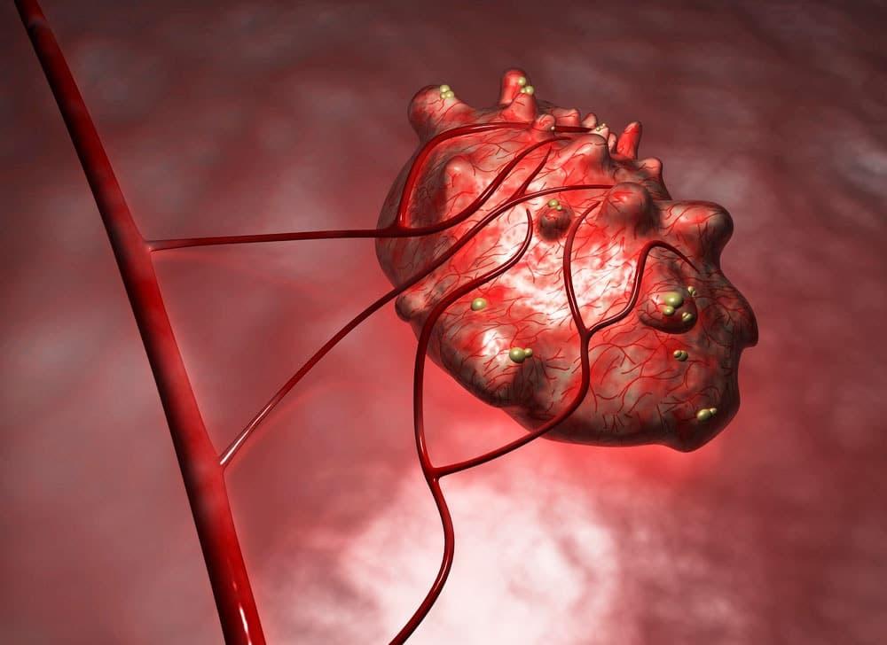 Гранулезоклеточная опухоль яичника –гормонально активное образование, проявляющееся нарушениями менструального цикла