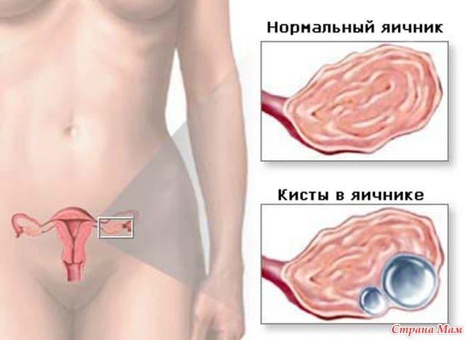 Фолликулярная киста – тонкостенное образование яичника, часто исчезающее самостоятельно