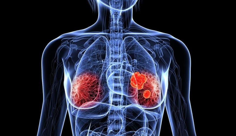 Гематома в тканях молочной железы, возникшая после удара, может стать основой для опухоли