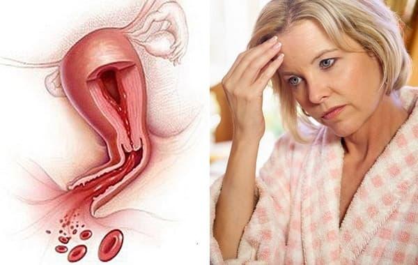 Как отличить месячные от кровотечения: пять тревожных признаков метроррагии
