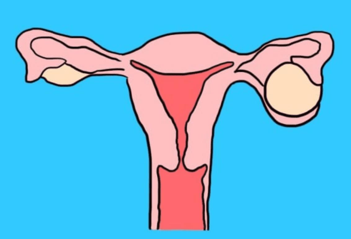 кистома яичника
