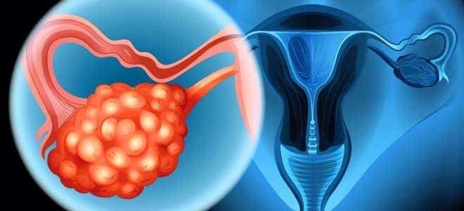 При синдроме склерокистозных яичников отмечается хроническая ановуляция