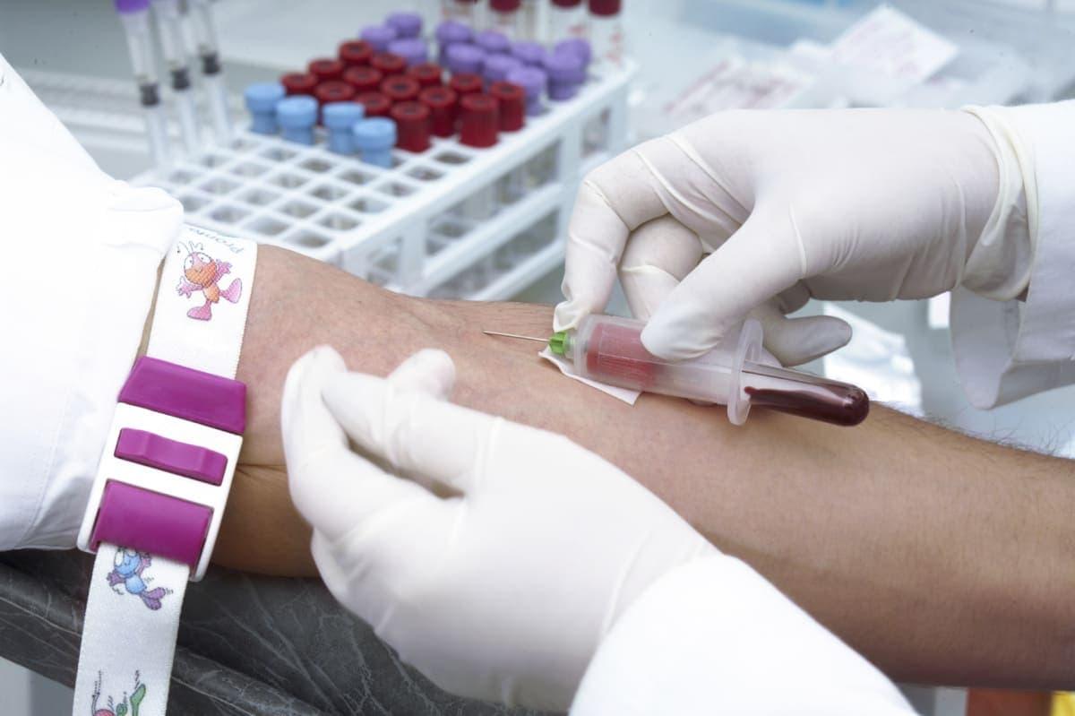 Анализы на гонадотропины и половые гормоны – основа диагностики