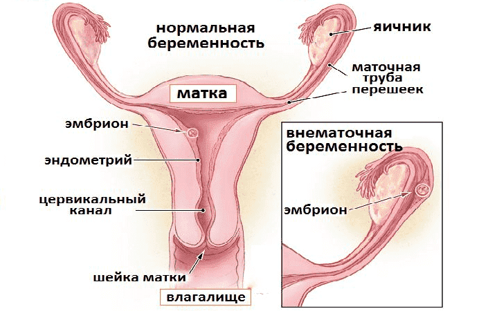 Внематочная беременность в правом и левом яичнике возникает с одинаковой частотой