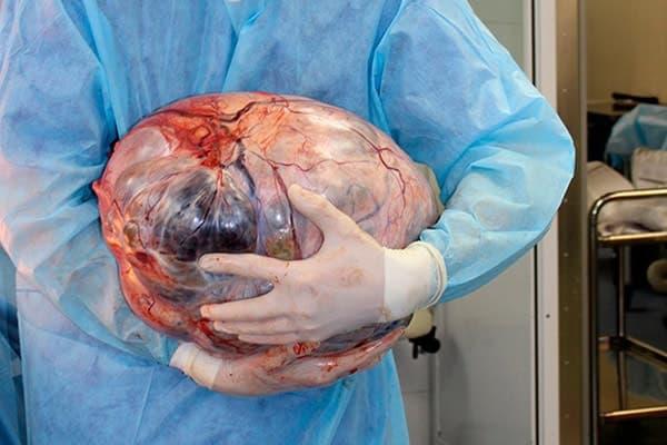 Гранулезоклеточная опухоль яичника взрослого типа выявляется после 40 лет и сочетается с соматической патологией