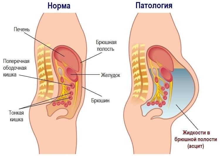 Большая фиброма нередко становится причиной возникновения синдрома Мейгса (анемия, плеврит, асцит)