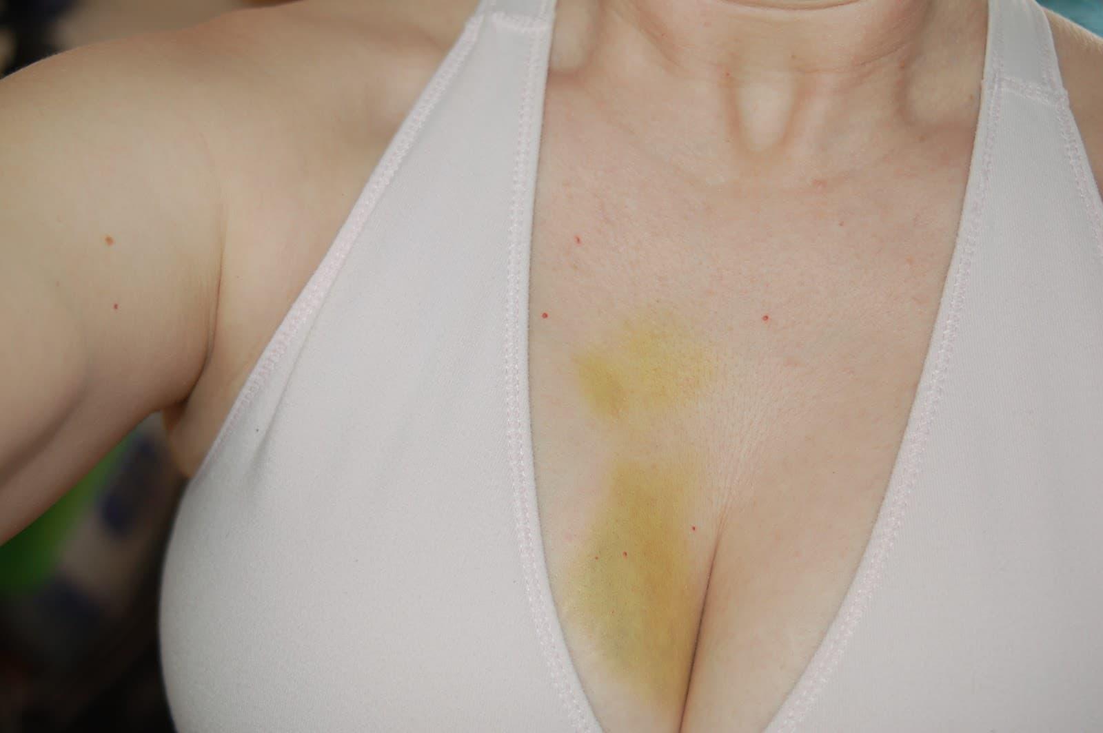 Синяк на груди после травмы – это основание для посещения врача и обследования молочных желез