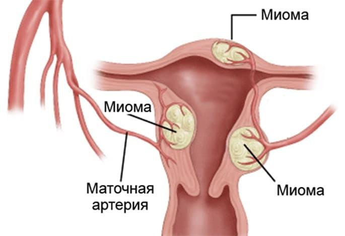 Миомы у женщин после 40 лет, которые приводят к маточным кровотечениям
