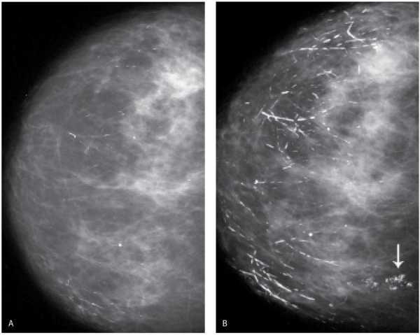 УЗИ-диагностика патологии груди