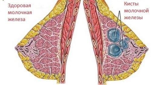 Нормальное строение груди и кисты молочной железы