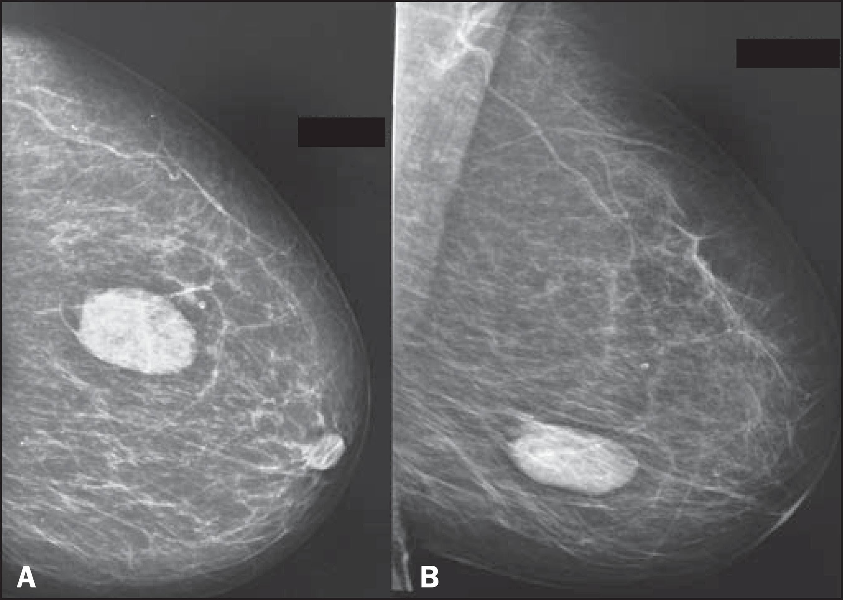 рентгеновское изображение
