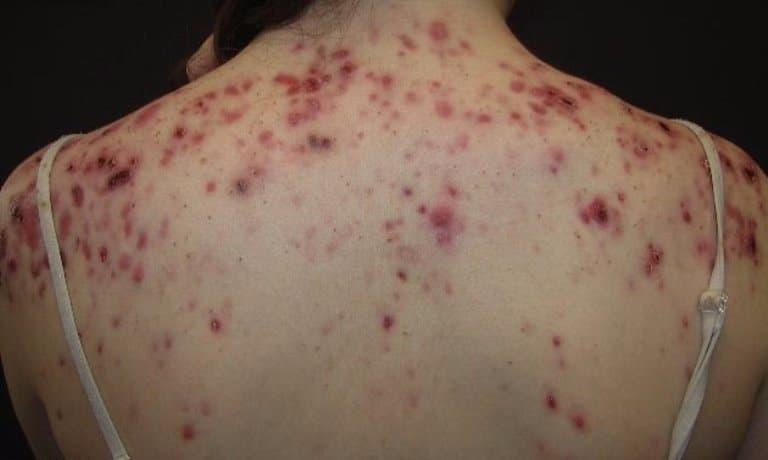 Угревая сыпь часто имеет гормональные причины