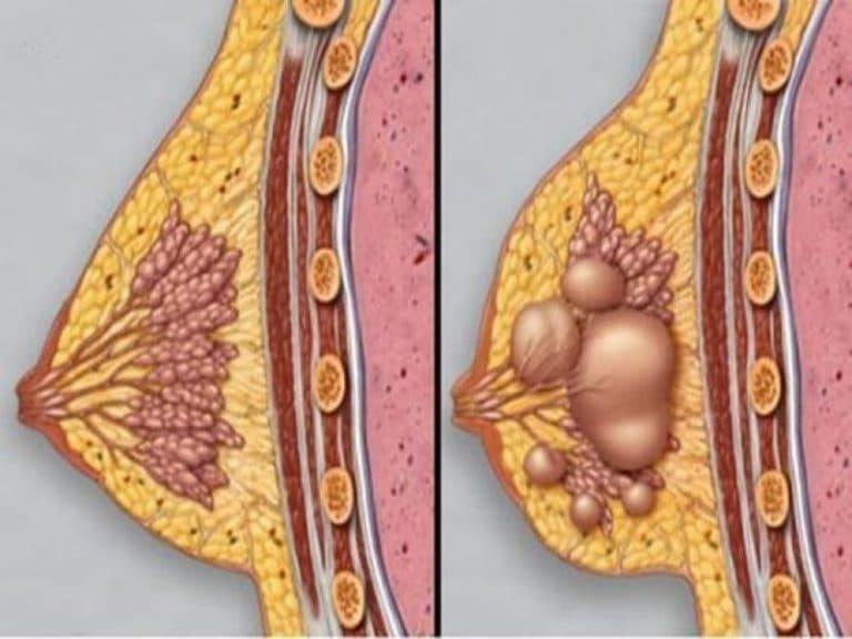 Схематичное изображение нормального строения молочных желез и изменений при мастопатии