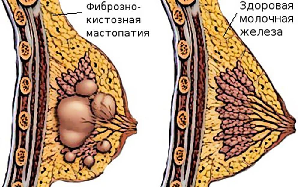 Фиброзно-кистозная мастопатия – это одна из форм болезни