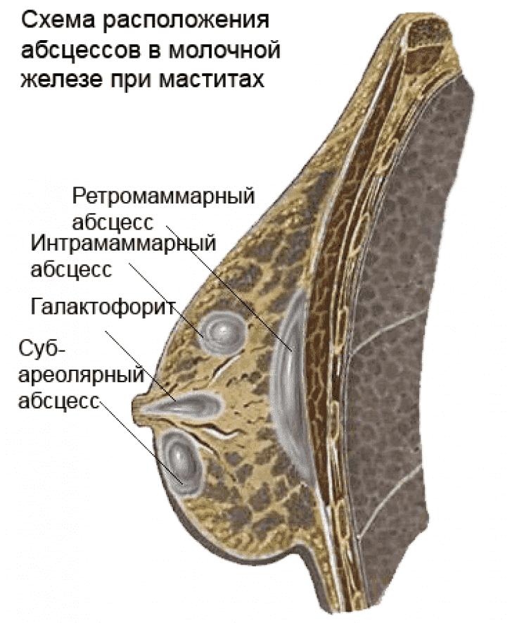 Места расположения гнойников в груди