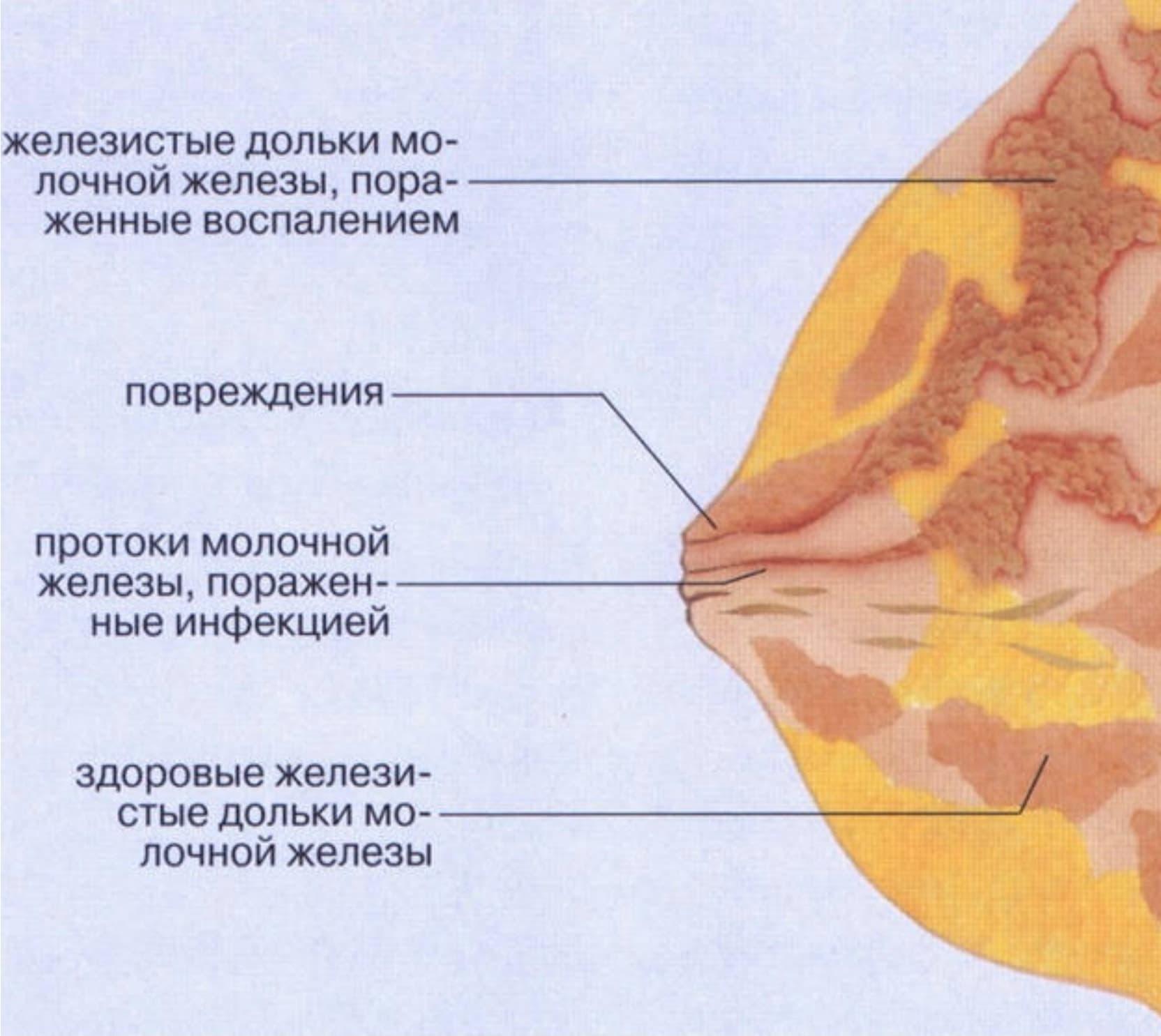 Схема развития гнойного процесса