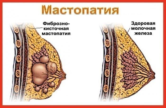 Схематичное строение здоровой молочной железы справа и при мастопатии слева