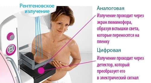 цифровая маммография что это такое