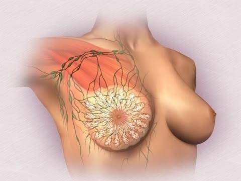 Послеоперационный фиброз молочной железы