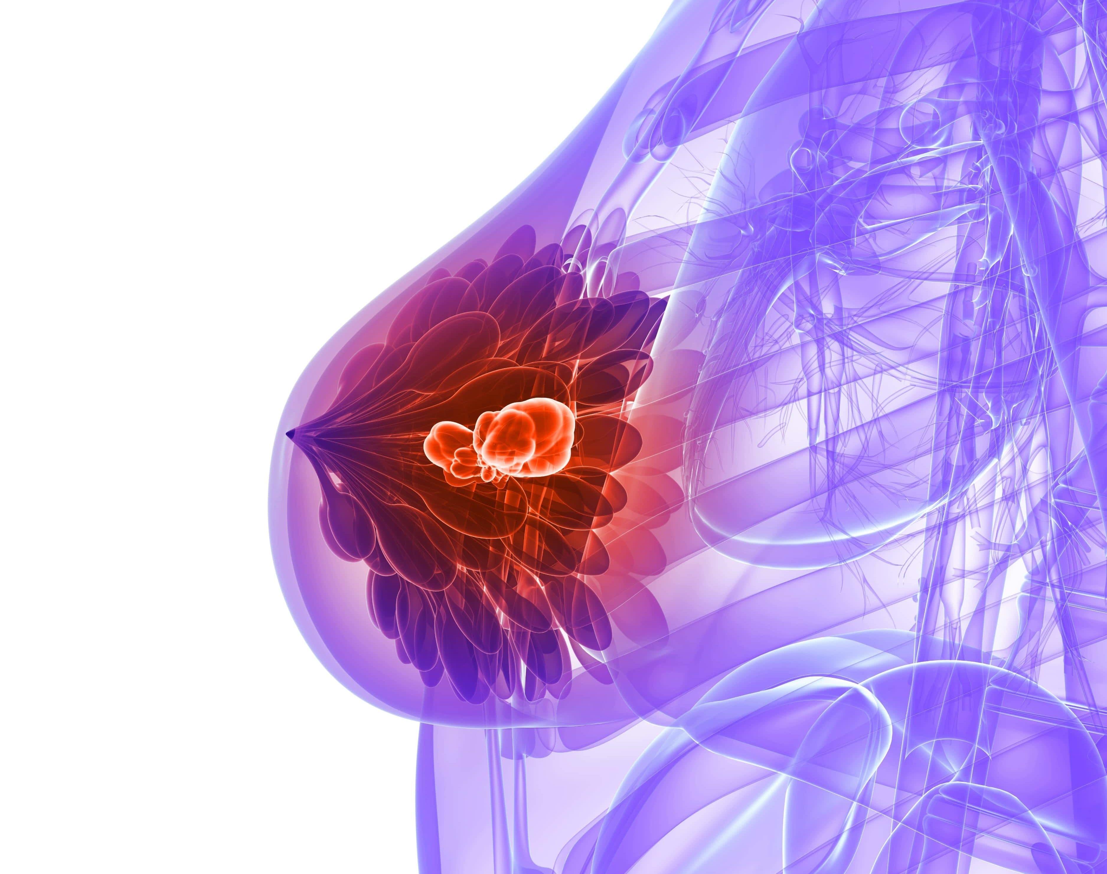 Любой вариант опухоли в груди требует проведения полноценных лечебно-диагностических мероприятий