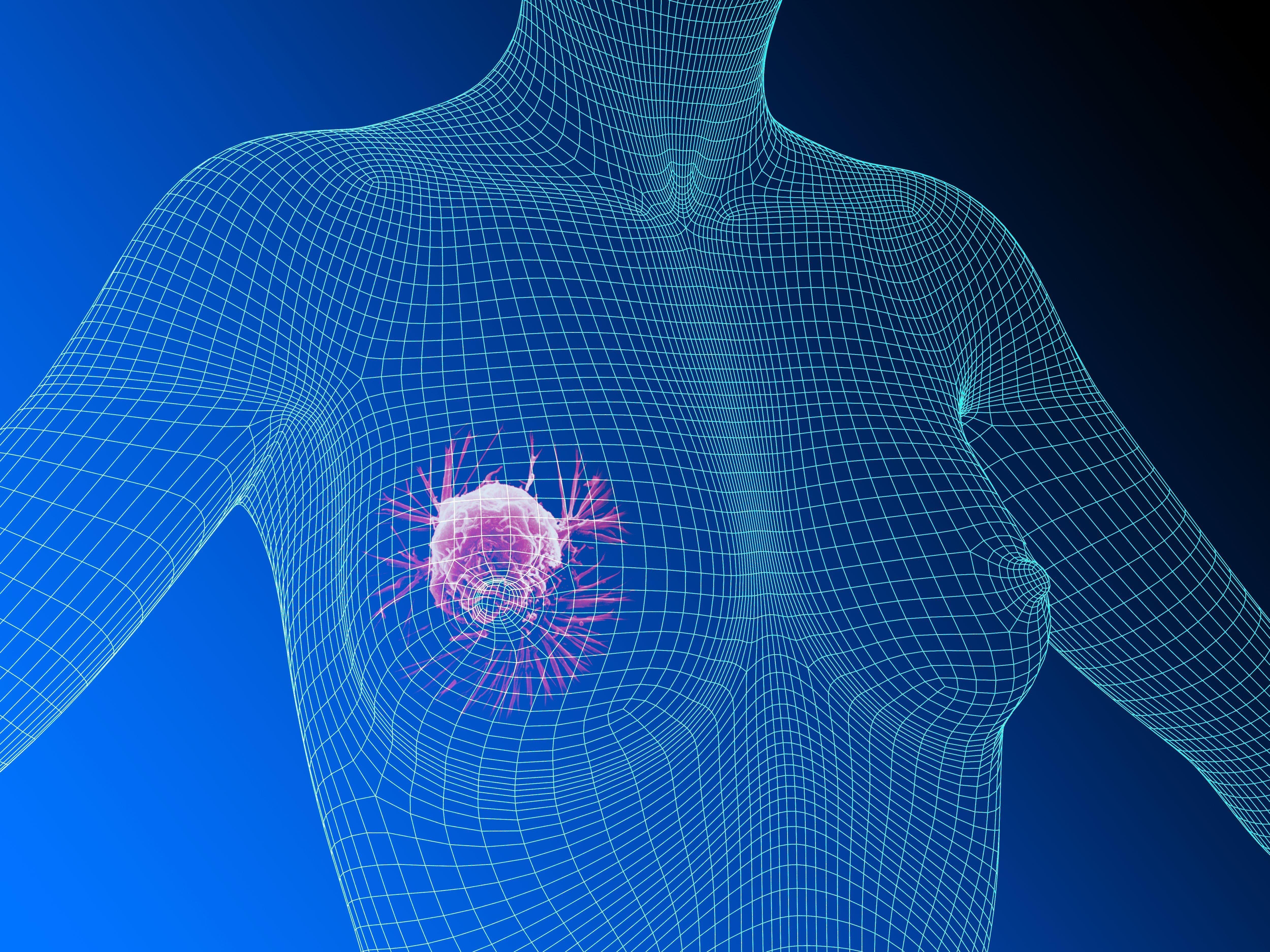опухоль в железистой ткани