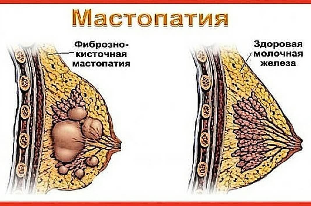 Рекомендации врачей при фиброзно кистозной мастопатии