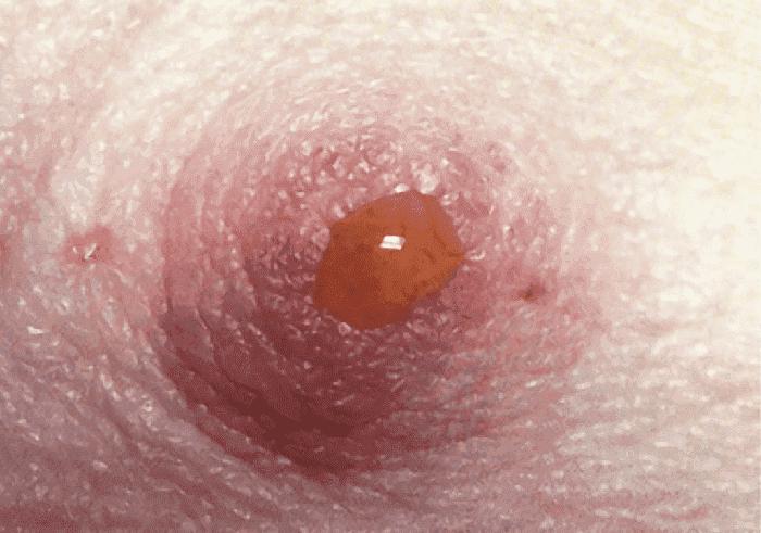 Когда нужно идти к врачу, если из груди идут желтые выделения