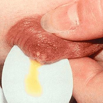 Желтые выделения из груди с неприятным запахом - срочно к врачу!