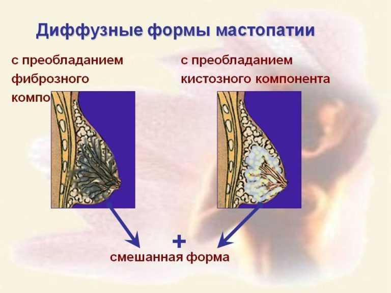 Мастопатия с преобладанием фиброза, кист и смешанная форма