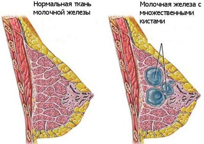 Одно из проявлений мастопатии – киста в молочной железе