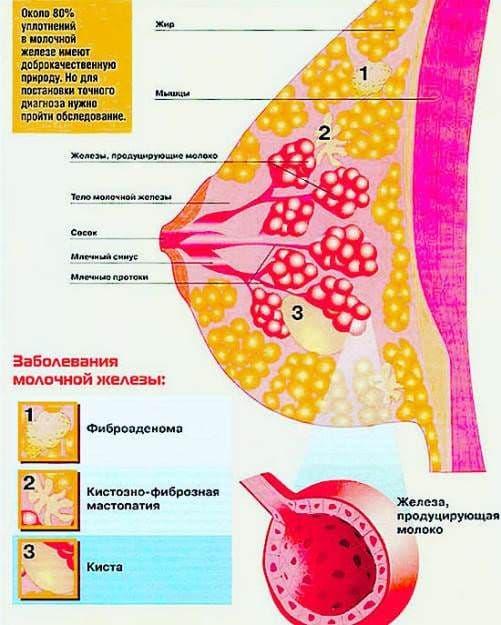 При самообследовании признаки диффузной мастопатии выявить сложно