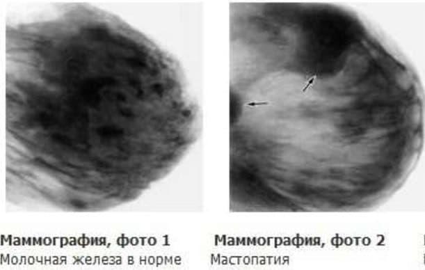 Так выглядит здоровая и больная молочная железа на снимке при маммографии