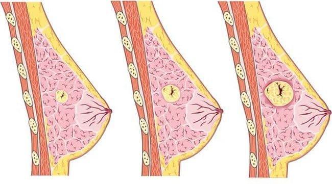 Узловая мастопатия не относится к онкологии, но это «болезнь на грани»