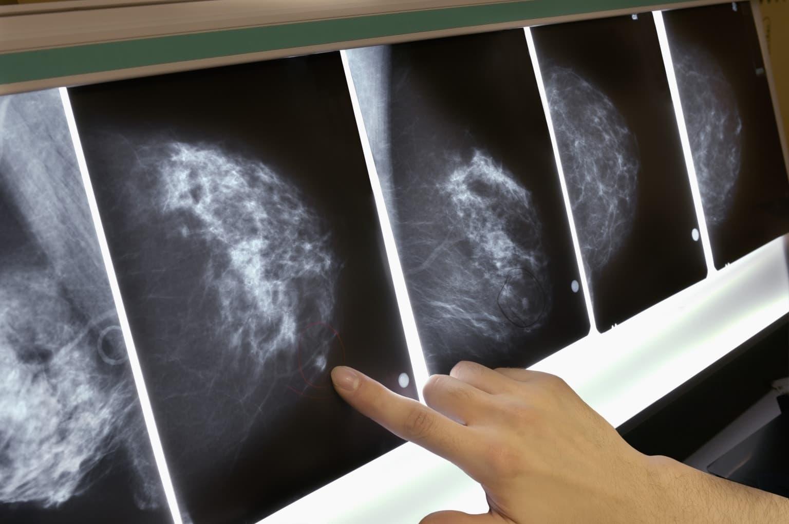 варианты фиброза груди