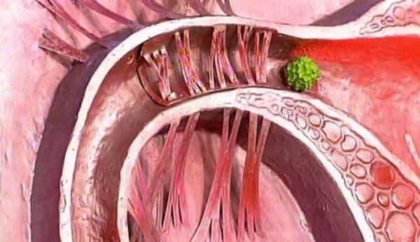 Развитие спаечной болезни может привести к внематочной беременности