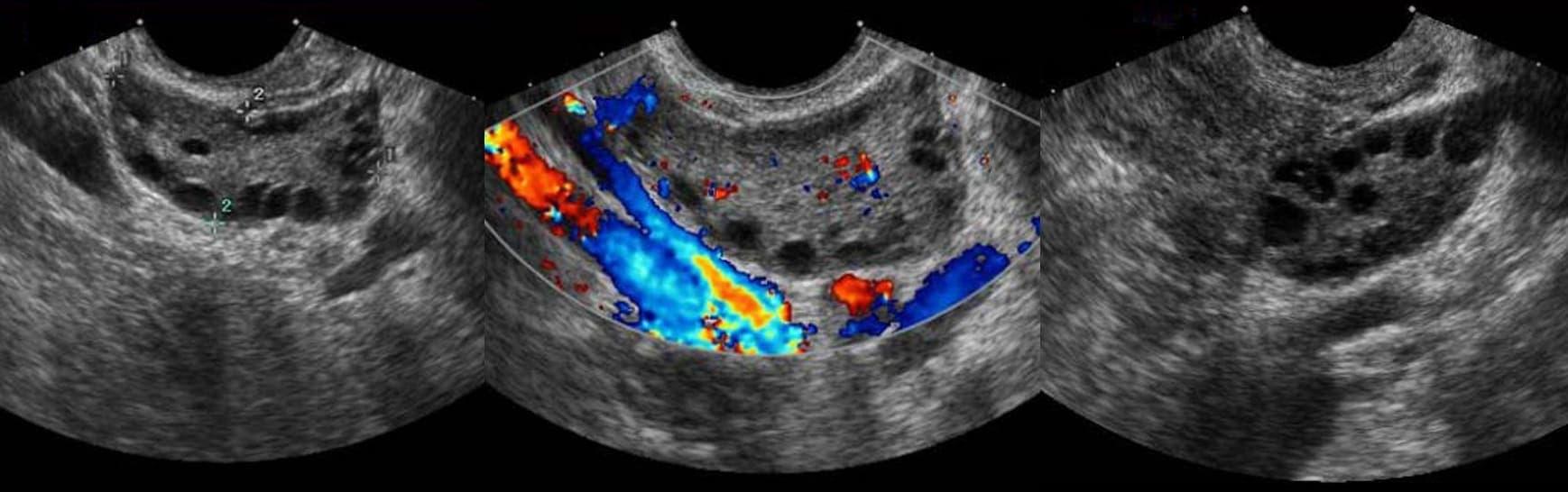 На УЗИ при склерокистозе яичников определяется появление мелких полостей диаметром до 1 см