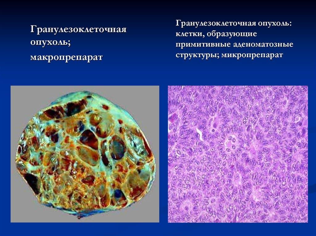 Злокачественная гранулезоклеточная опухоль распространяется на матку, маточные трубы и брюшину