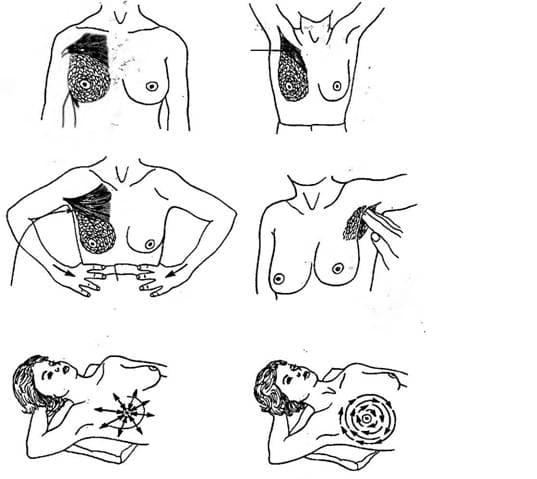 Схема самообследования молочных желез