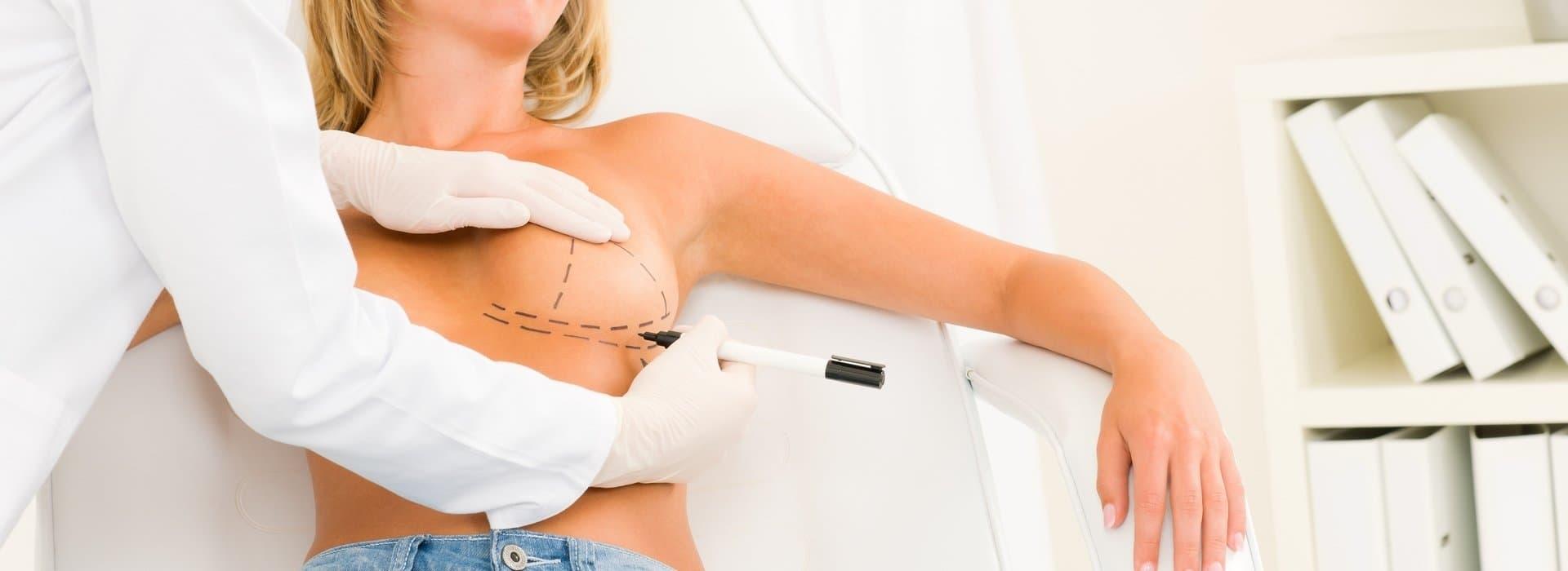 Перед увеличением груди врач проводит разметку операционного поля