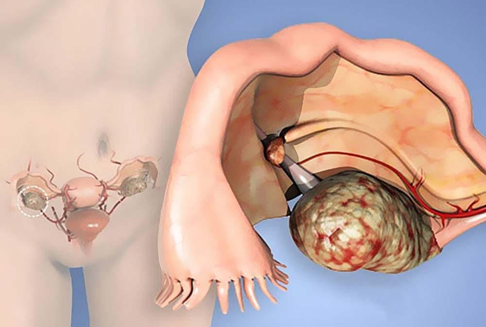 Лечить карциному яичника нужно начинать как можно раньше